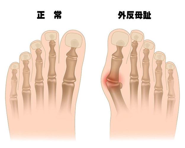 外反母趾の症状