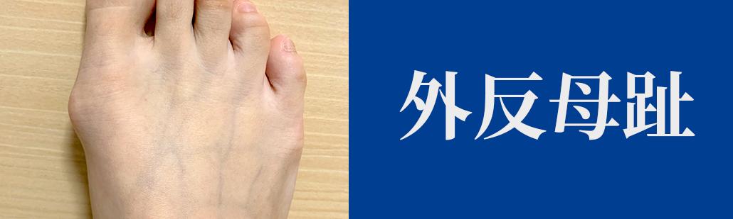 外反母趾の原因と専門家による治療方法